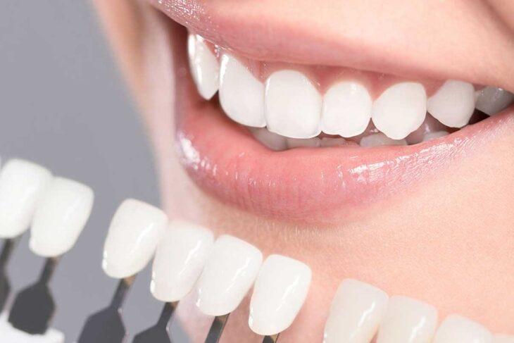 Buying Crest Whitening strips online for better whitening result