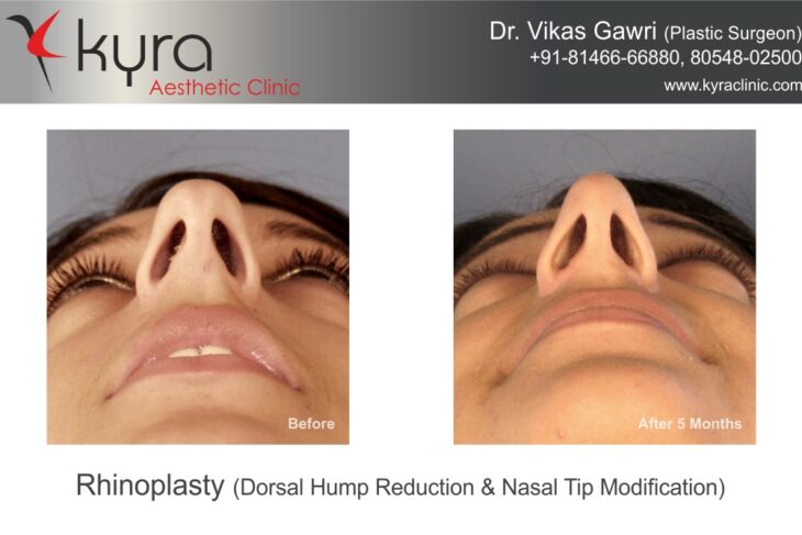 How Comfortable Is The Nose Job Surgery For The Patients?